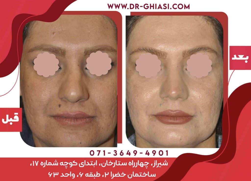 عمل زیایی بینی