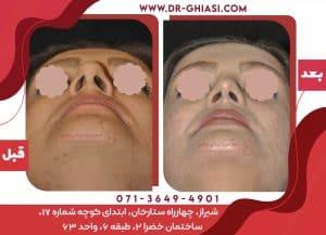 بهترین جراح بینی در شیراز
