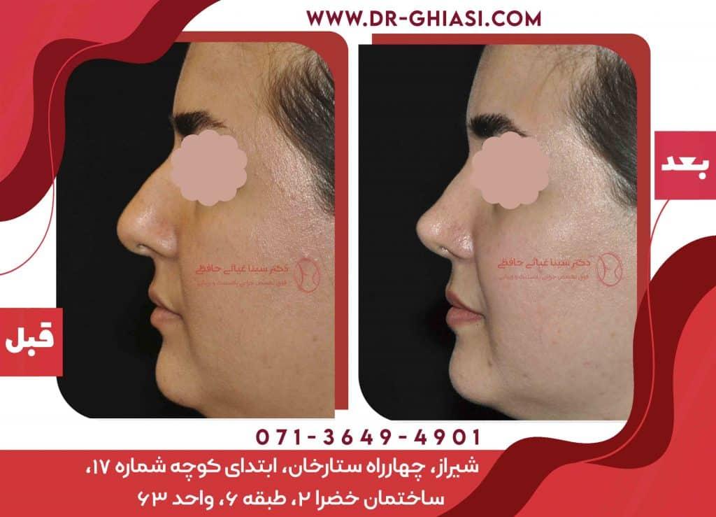 عمل بینی دکتر غیاثی شیراز