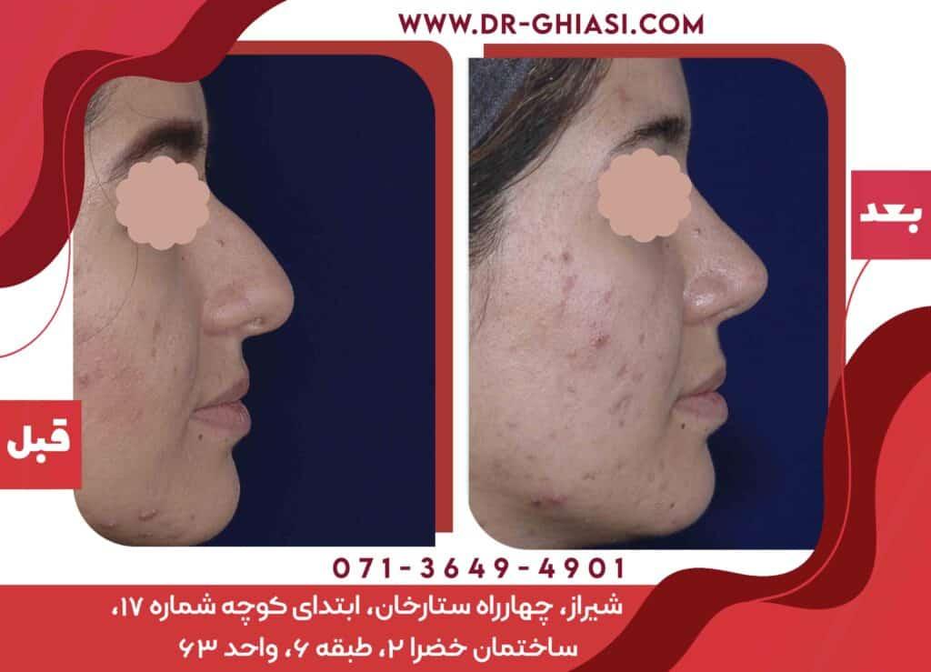 رینوپلاستی جراحی زیبایی بینی در شیراز